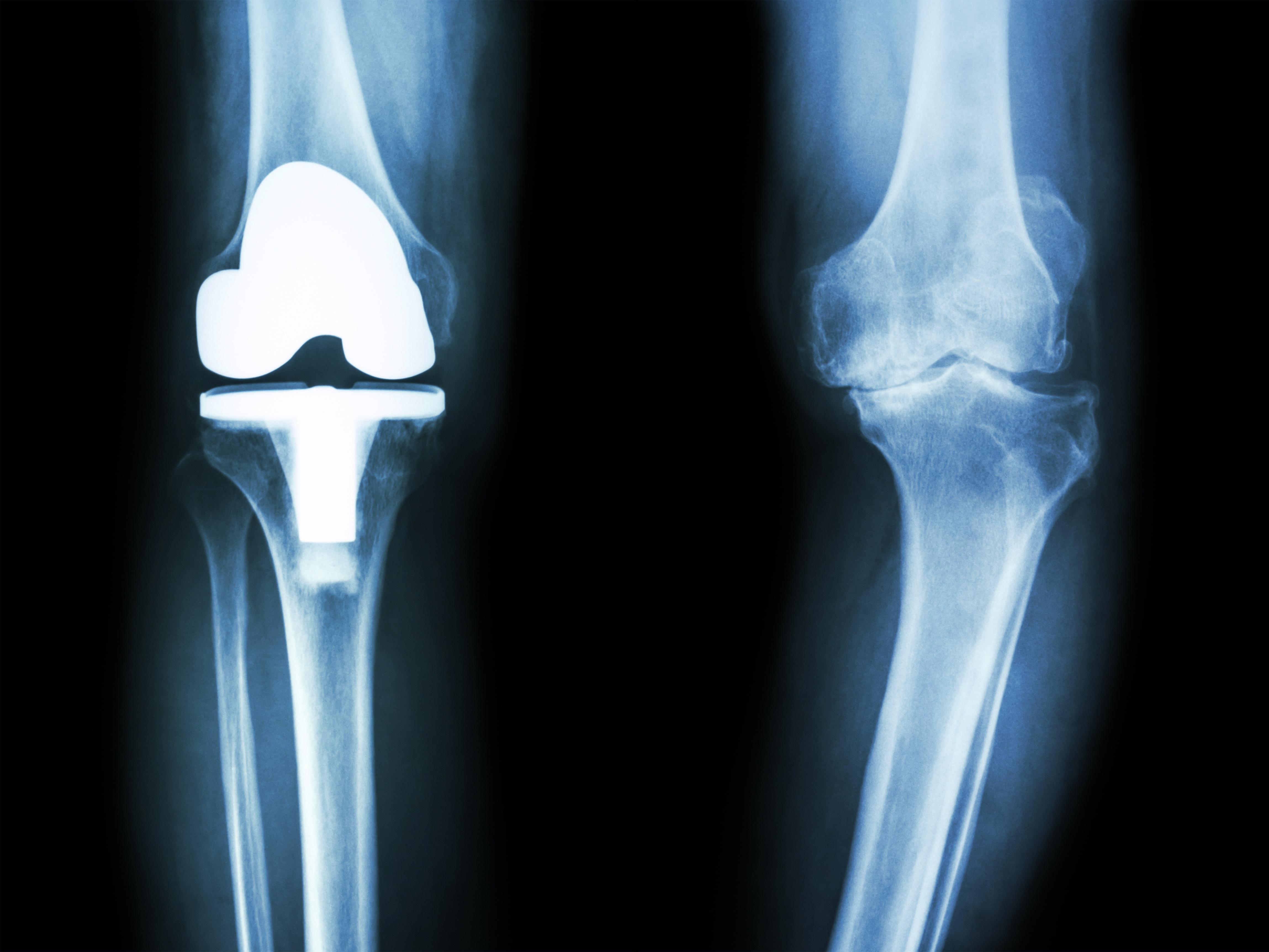 人工膝関節全置換術のレントゲン