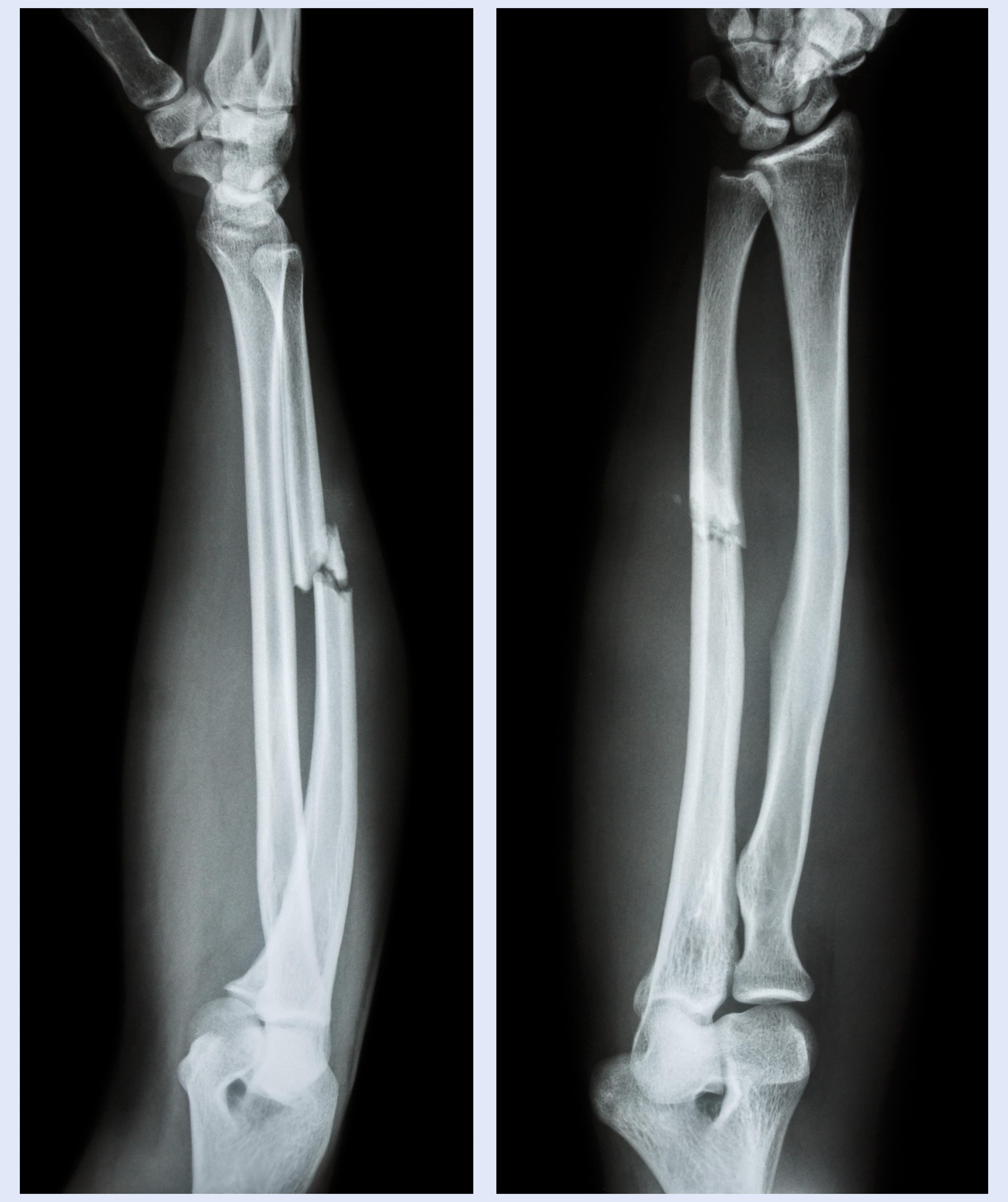 前腕骨折のレントゲン