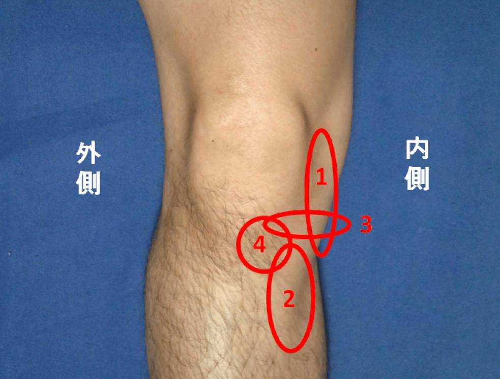右膝内側の痛い部位
