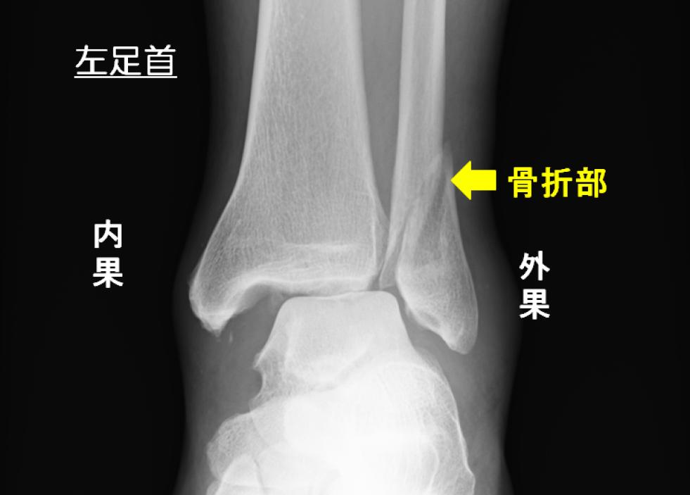 左足首の外果骨折の手術前のレントゲン 外果が斜めに骨折している バラバラではないので手術は難しくない