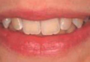 До: красивая улыбка. Работа стоматологов круглосуточной стоматологии София-Дента пермь sofiya-denta.ru