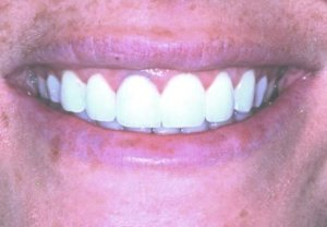 Сломался зуб - итог. Работа стоматологов круглосуточной стоматологии София-Дента http://sofiya-denta.ru