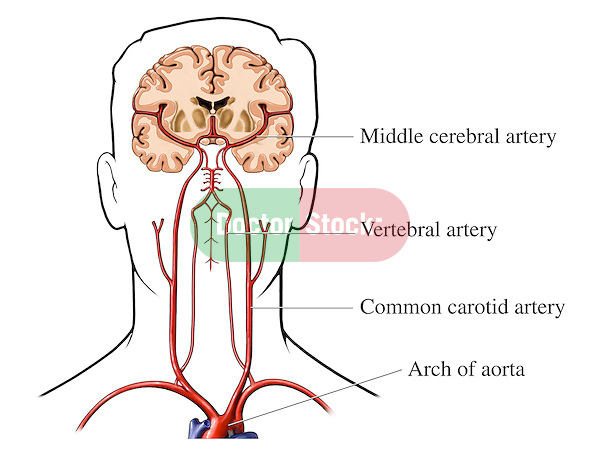 Blood Supply to the Brain Doctor Stock
