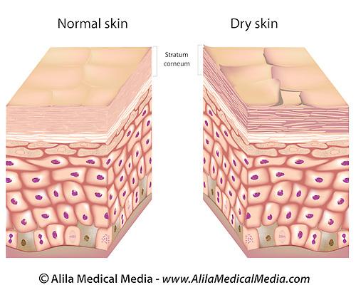 Dry skin Alila Medical Images