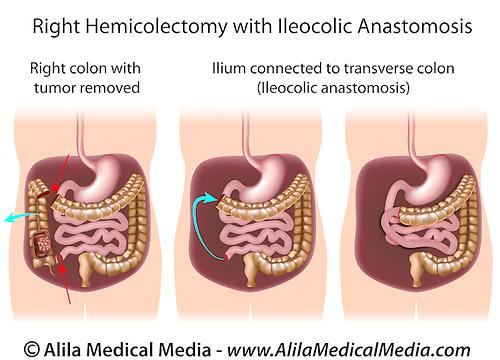 Right hemicolectomy with ileocolic anastomosis Alila Medical Images