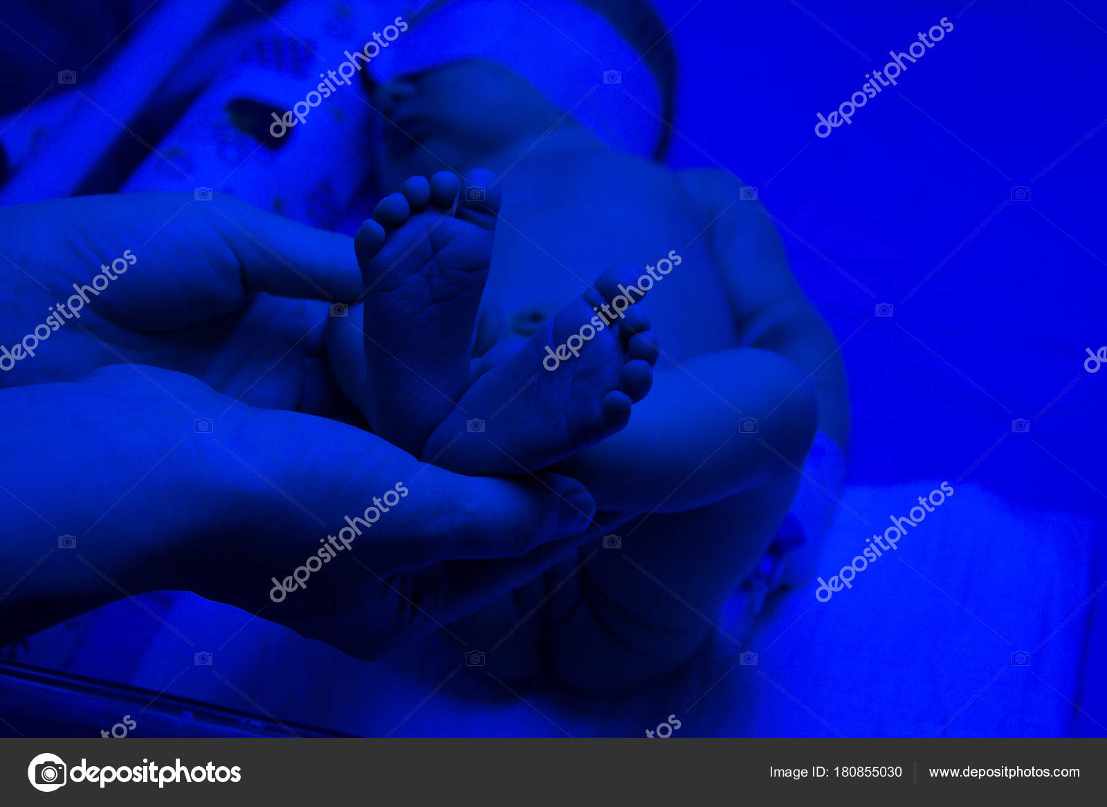 Newborn Babies Jaundice Treatment Newborn Child Baby Having A Treatment For Jaundice Under