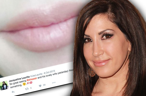 jacqueline laurita plastic surgery rhonj tell all