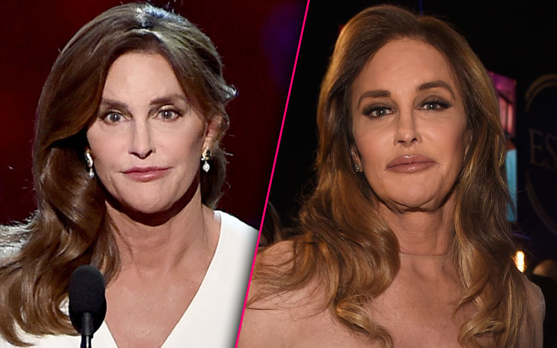 Caitlyn Is That You Jenner Reveals Drastic Change At The