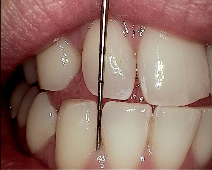 Periodontics Insufficient Attached Gingiva - Star Dental Assisting