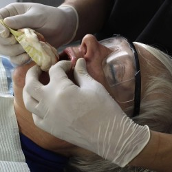 A dentist removes the denture mold of Marlene Trithardt, a Canadian patient, at a dental clinic in Sabanilla near San Jose, November 1, 2012.