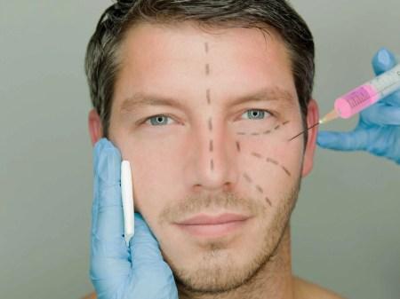 Defined Cheekbones Surgery