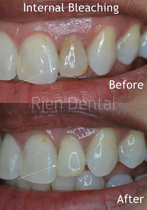 Internal bleaching after root canal treatment Dentist Bayside