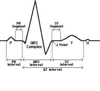 ekg diagram explanation