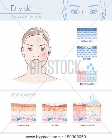 Dry Skin Hydration Vector  Photo (Free Trial) Bigstock