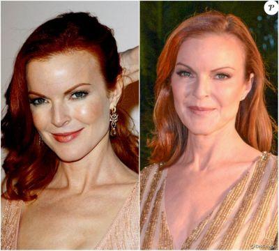 Marcia Cross, en 2004 et 2017 - Les stars de Desperate Housewives ont énormément changé depuis ...
