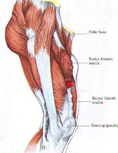 Thigh (Quadricep) Injuries \u2014 Renwick Sports Physiotherapy