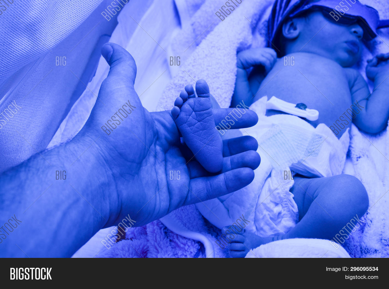 Newborn Babies Jaundice Treatment Dad Holds Legs Palms Image Photo Free Trial Bigstock