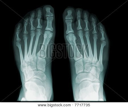 X Ray Wallpaper Iphone 7 Gallery Xray Foot