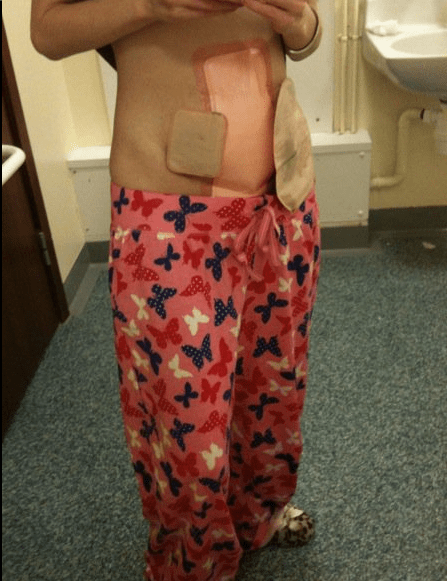 how to clean colostomy bag