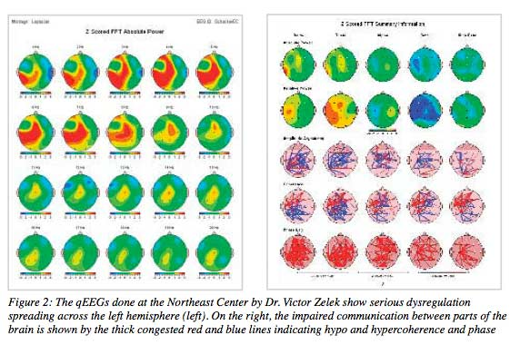 The qEEG's done at the NE Center by Dr. Victor Zelek