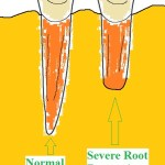 Q: I have braces and was told I have 'external root resorption', what does that mean and is there any treatment for it?