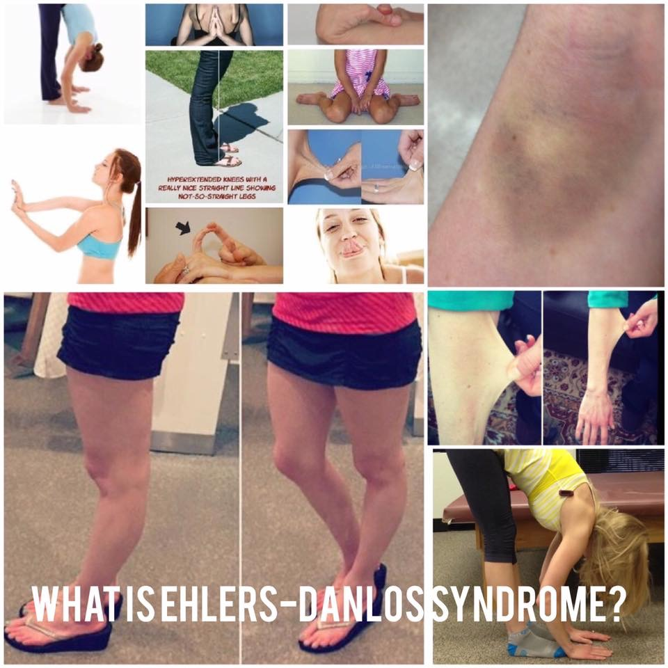 Ehlers Danlos Syndrome What Does Ehlers Danlos Syndrome Look Like
