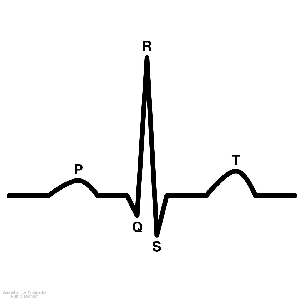 ekg heart diagram