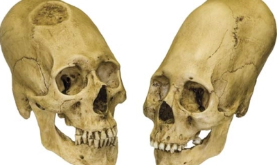 The Enigmatic Ancient Humanoid Skulls Of Paracas Peru Elongated-skulls-peru