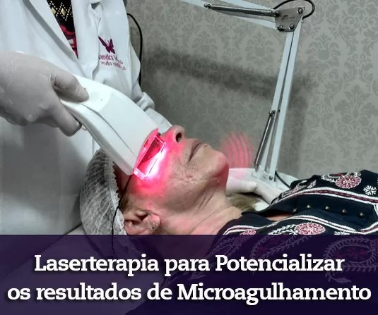 laserterapia facial e ledterapia facial em bras lia. Black Bedroom Furniture Sets. Home Design Ideas