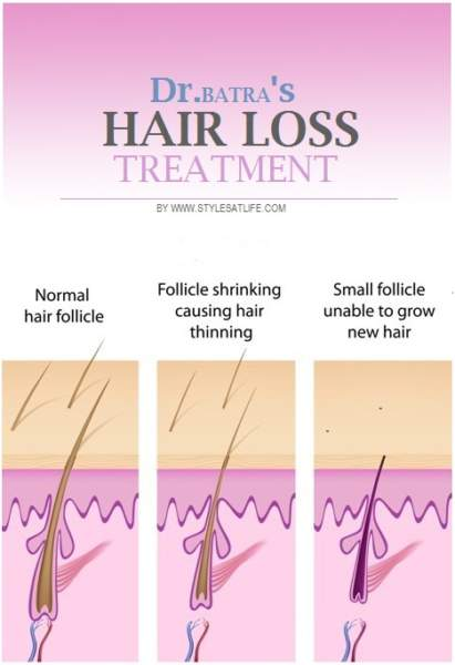 Dr Batra\u0027s Hair Loss Treatment Styles At Life
