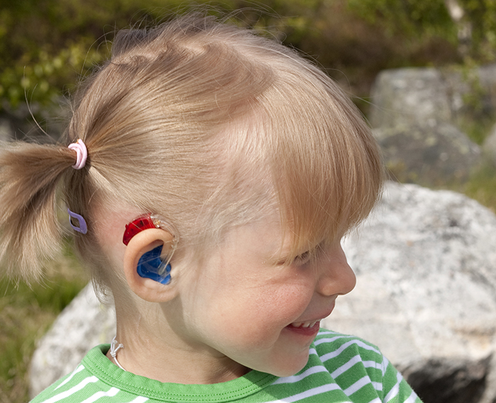Supporting Success For Children With Hearing Loss social-skill