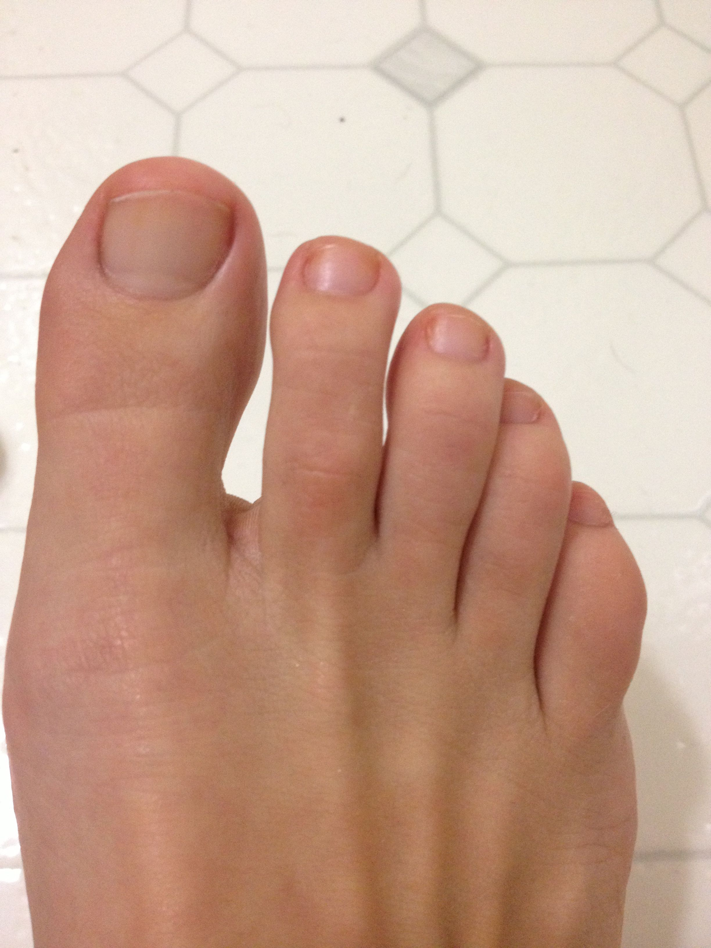 How To Whiten Nail Toenails Stained Yellow From Nail