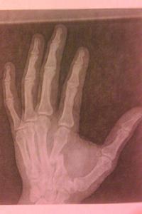 Radiografía de la mano Barnett después de su encuentro con Cormier