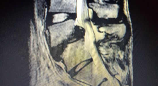 Joven residente de Monteverde necesita de urgente cirugia