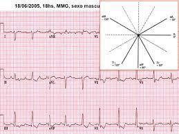 ECG Sequenciado