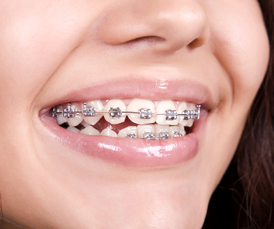 Rahul Wallpaper 3d Swetha Dental Clinic Vellore Best Dental Clinic In
