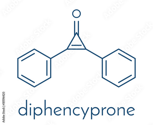 Diphencyprone (diphenylcyclopropenone) alopecia treatment drug