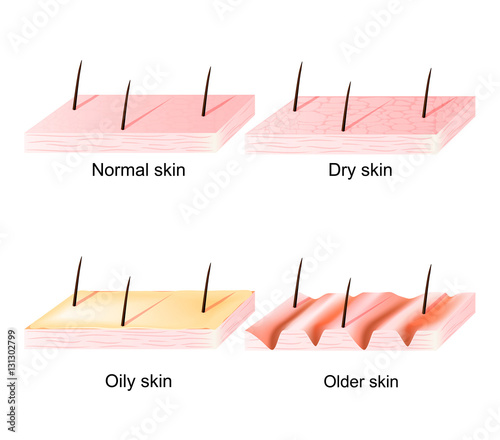 Normal, dry, oily, younger and older skin sectional view Buy
