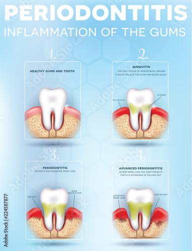 Periodontitis Vs Gingivitis acute necrotizing ulcerative gingivitis