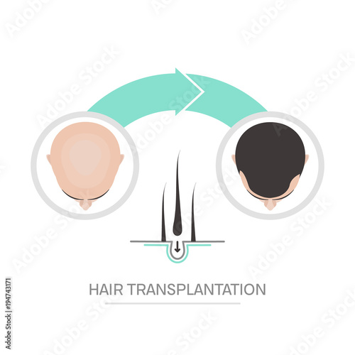 Hair transplantation surgery steps infographics Patient before and