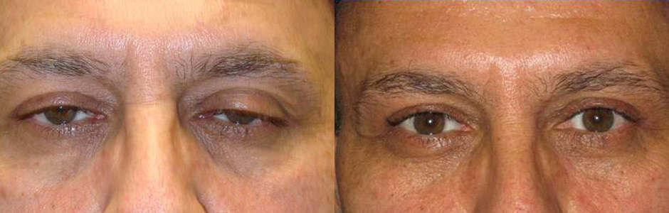 Eyelid Ptosis ( Droopy Eyelid ) Surgery Taban MD oculoplastic - ptosis surgery