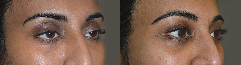 Who Should Perform Cosmetic Eyelid Ptosis Surgery? TabanMD - ptosis surgery