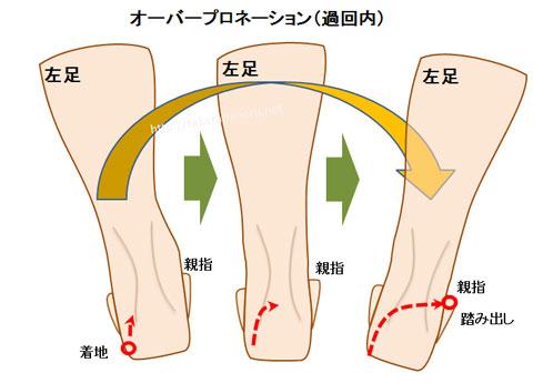 過回内(オーバープロネーション)している足の動き