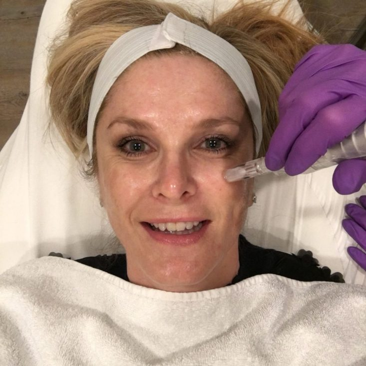 Does the Vampire Facial really work? Check out the PRP treatment.