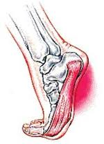 Image of plantar fasciitis pain on the bottom of the foot. Plantar fasciitis treatment