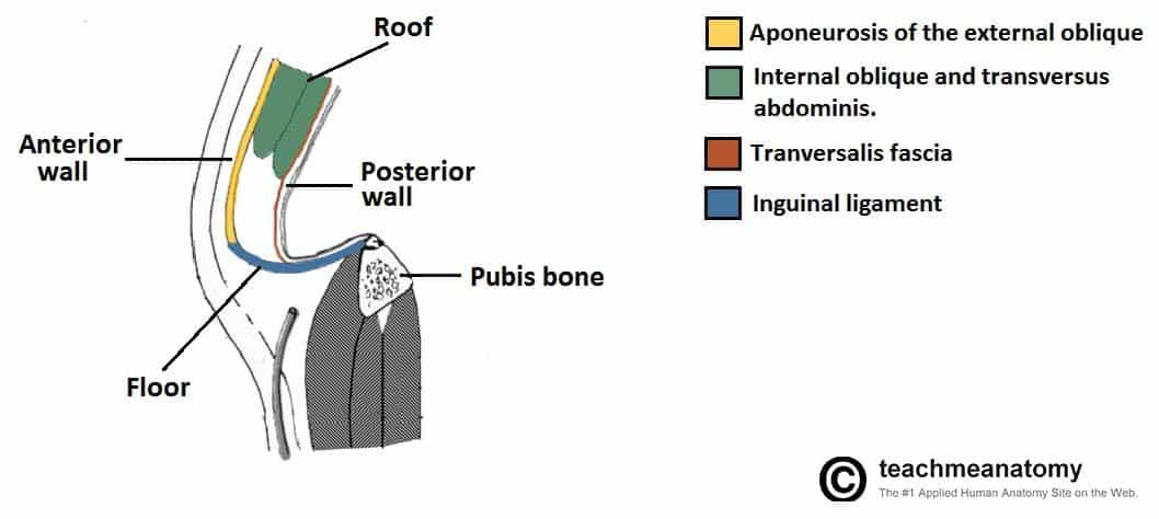 inguinal hernia in women diagram