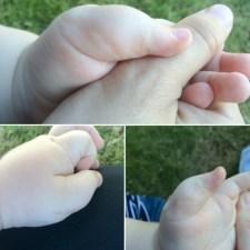 thumb surgery anniversary