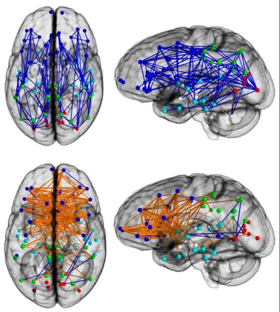 A parte de cima mostra as regiões masculinos mais interligados, a parte inferior mostra as regiões femininas mais interligados.  De: Ingalhalikar et al.  PNAS (publicação on-line antes de impressão).