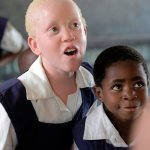 African bishop: Church must work to end violence against albinos