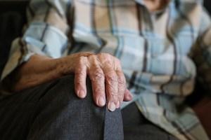 关节炎手的照片 - 类的药物对于一些关节炎工程, 并不是所有